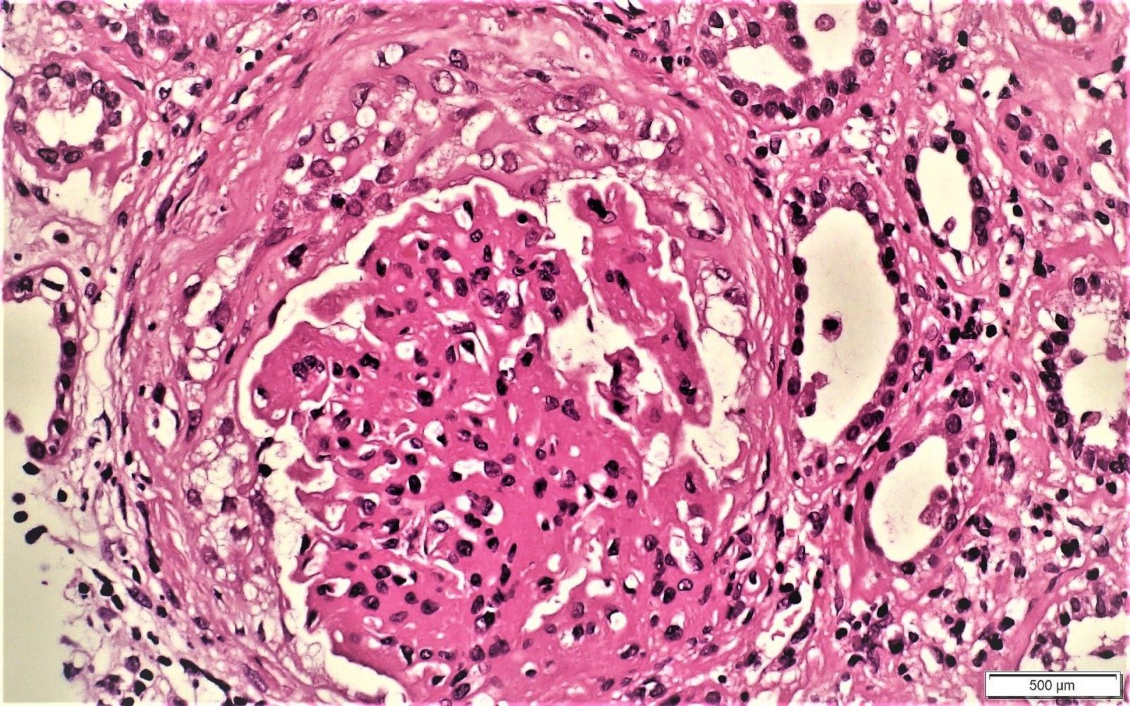 Fibrocellular crescent
