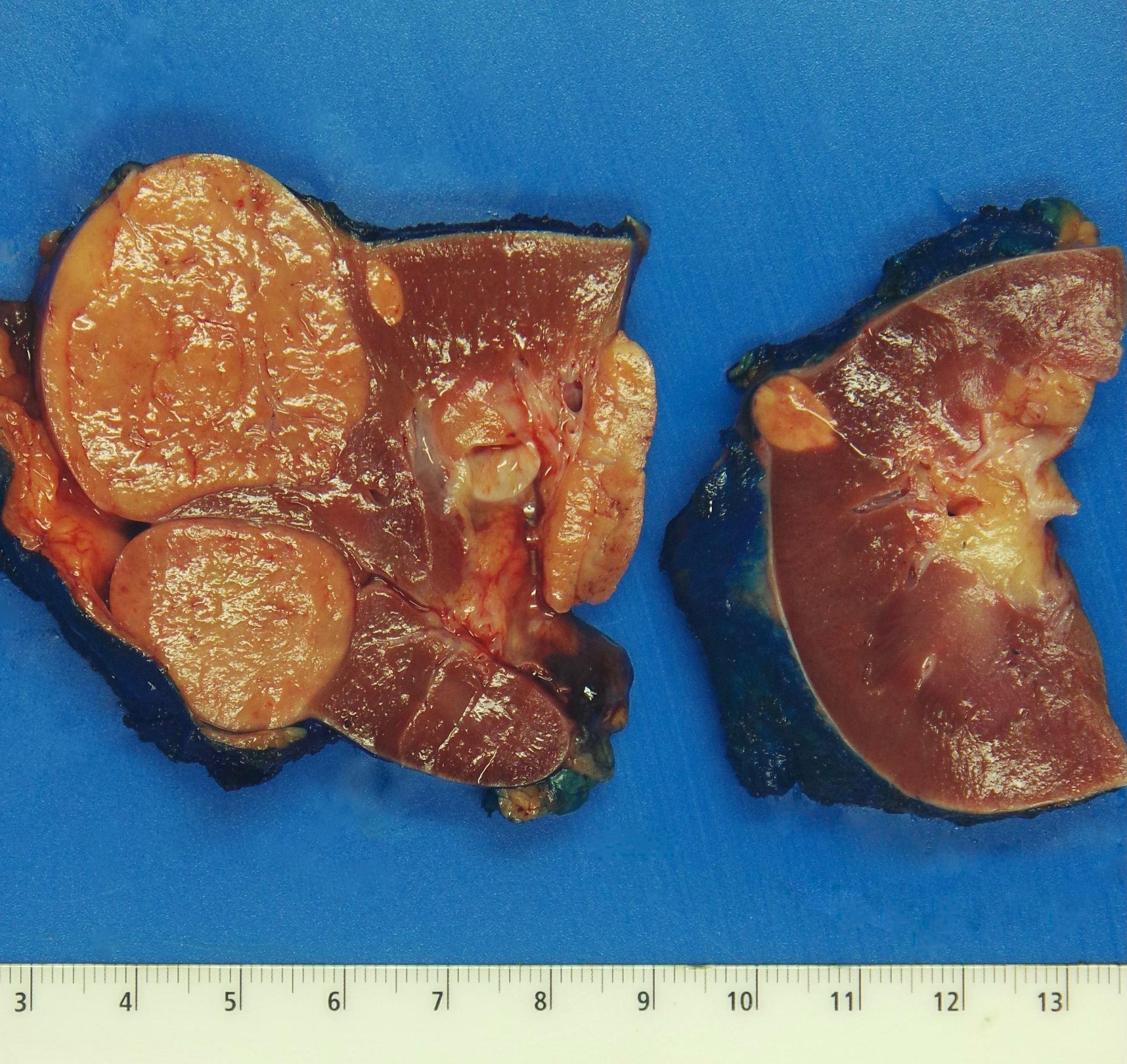 Multiple tan-brown tumors