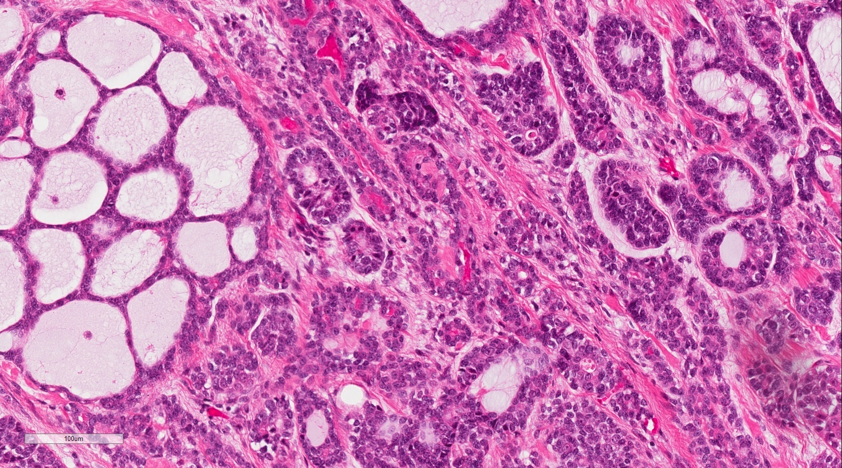 Pathology Outlines Adenoid Cystic Carcinoma