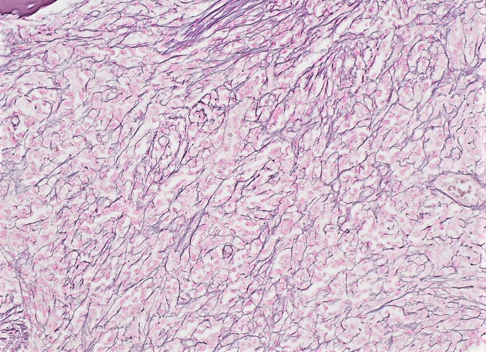 Bone marrow biopsy - reticulin stain