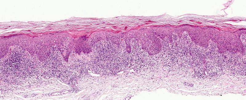 Lichenoid interface dermatitis