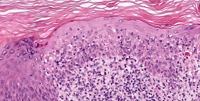 Civatte bodies in epidermis