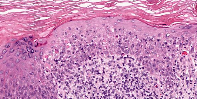 Civatte bodies in epidermis