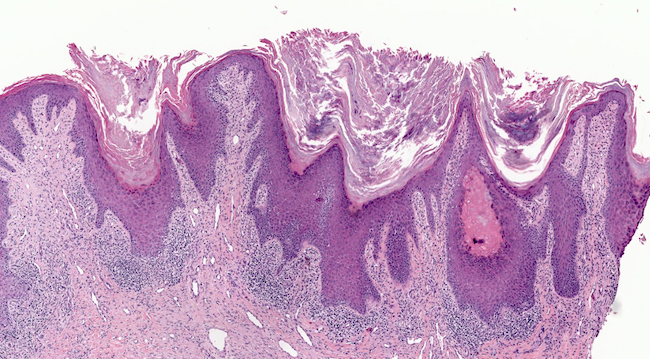Hyperplastic epidermis with hyperkeratosis