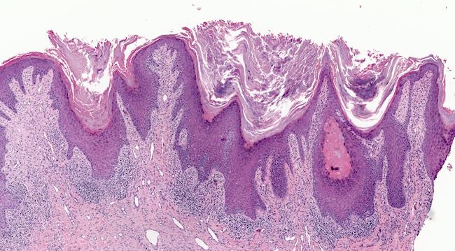 Hyperplastic epidermis with hyperkeratosis