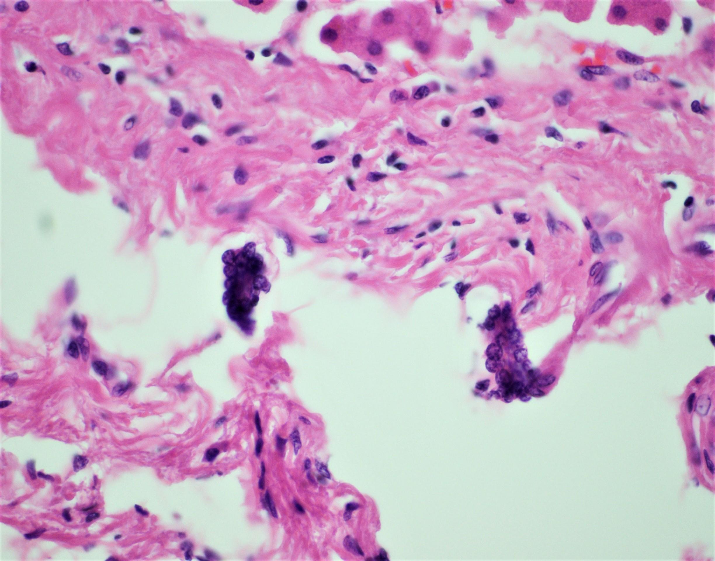 Large megakaryocytes