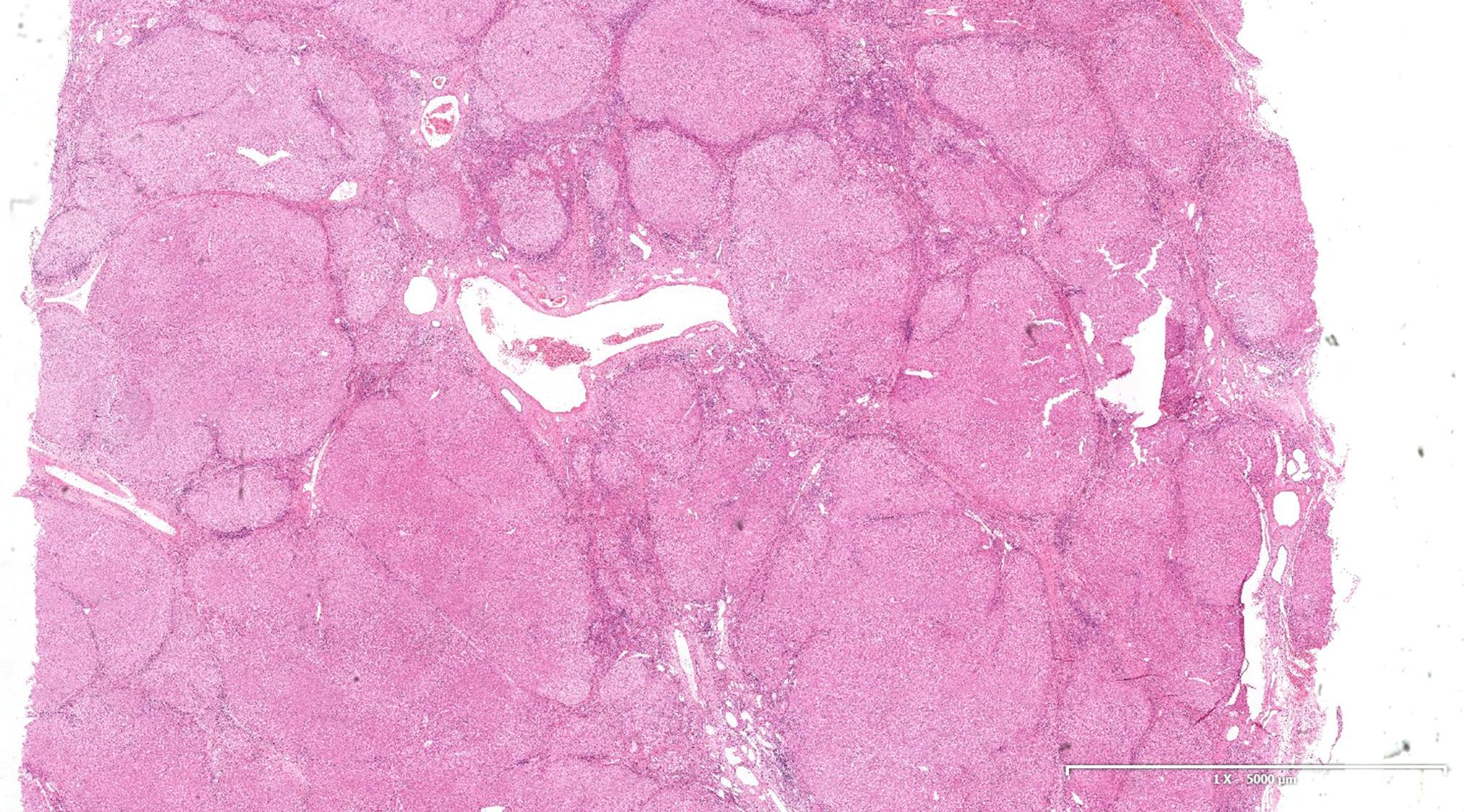 Biliary type cirrhosis