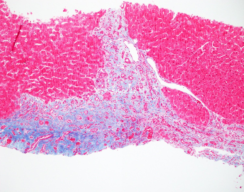 Fibrosis