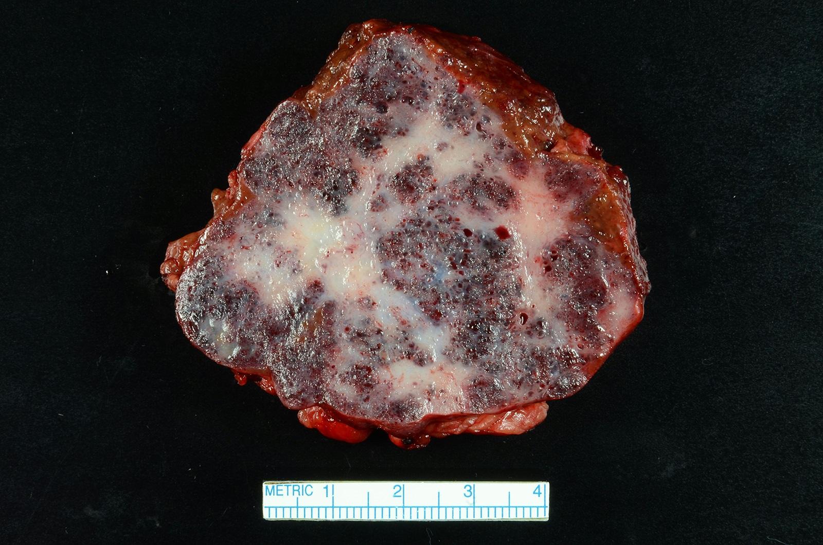 Cavernous hemangioma