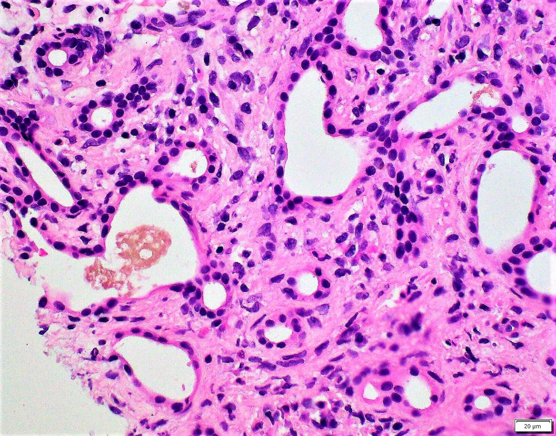 Bland glandular cytology