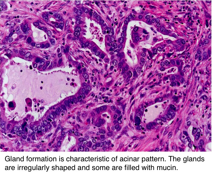 Pathology Outlines Adenocarcinoma Overview