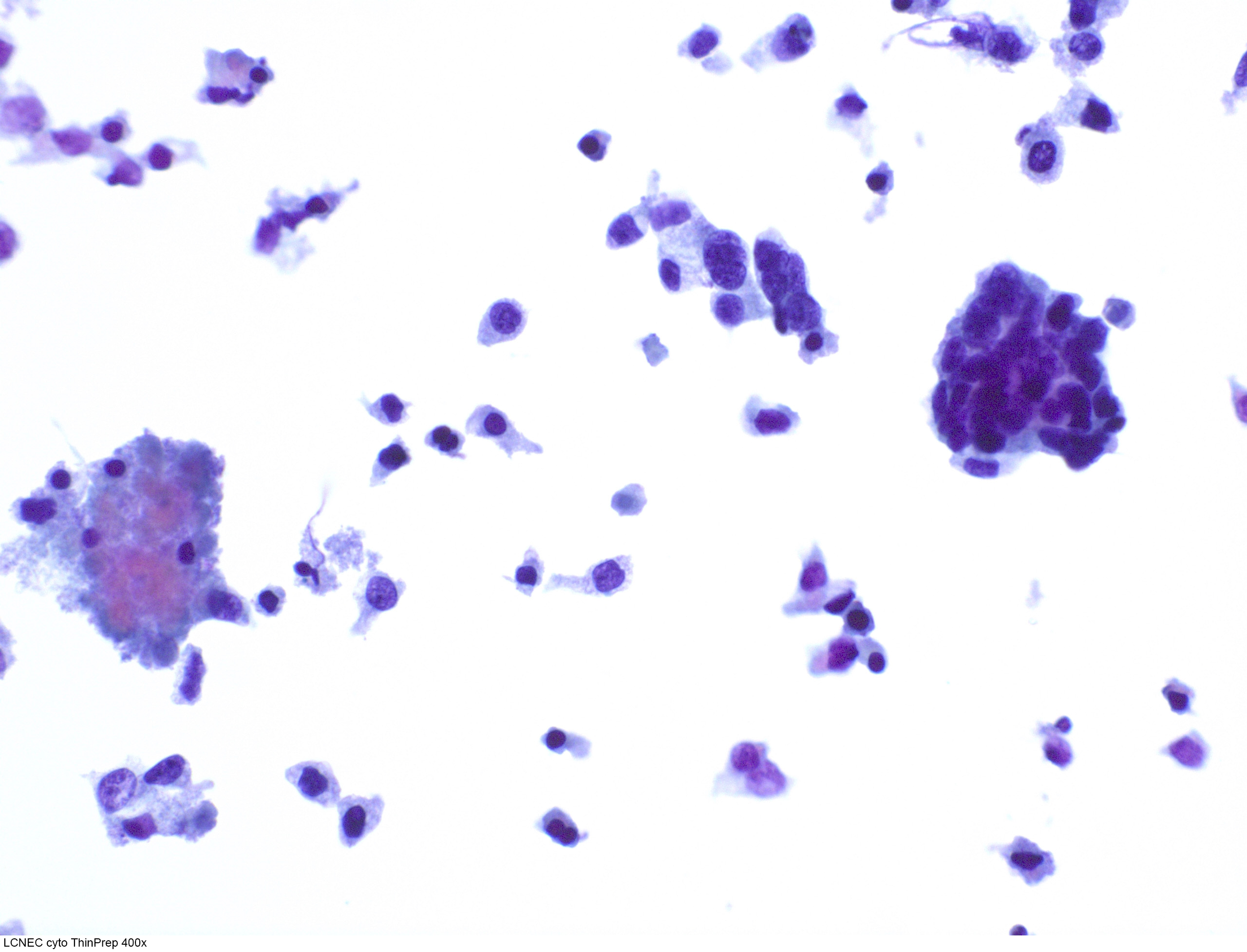 Pap stained ThinPrep
