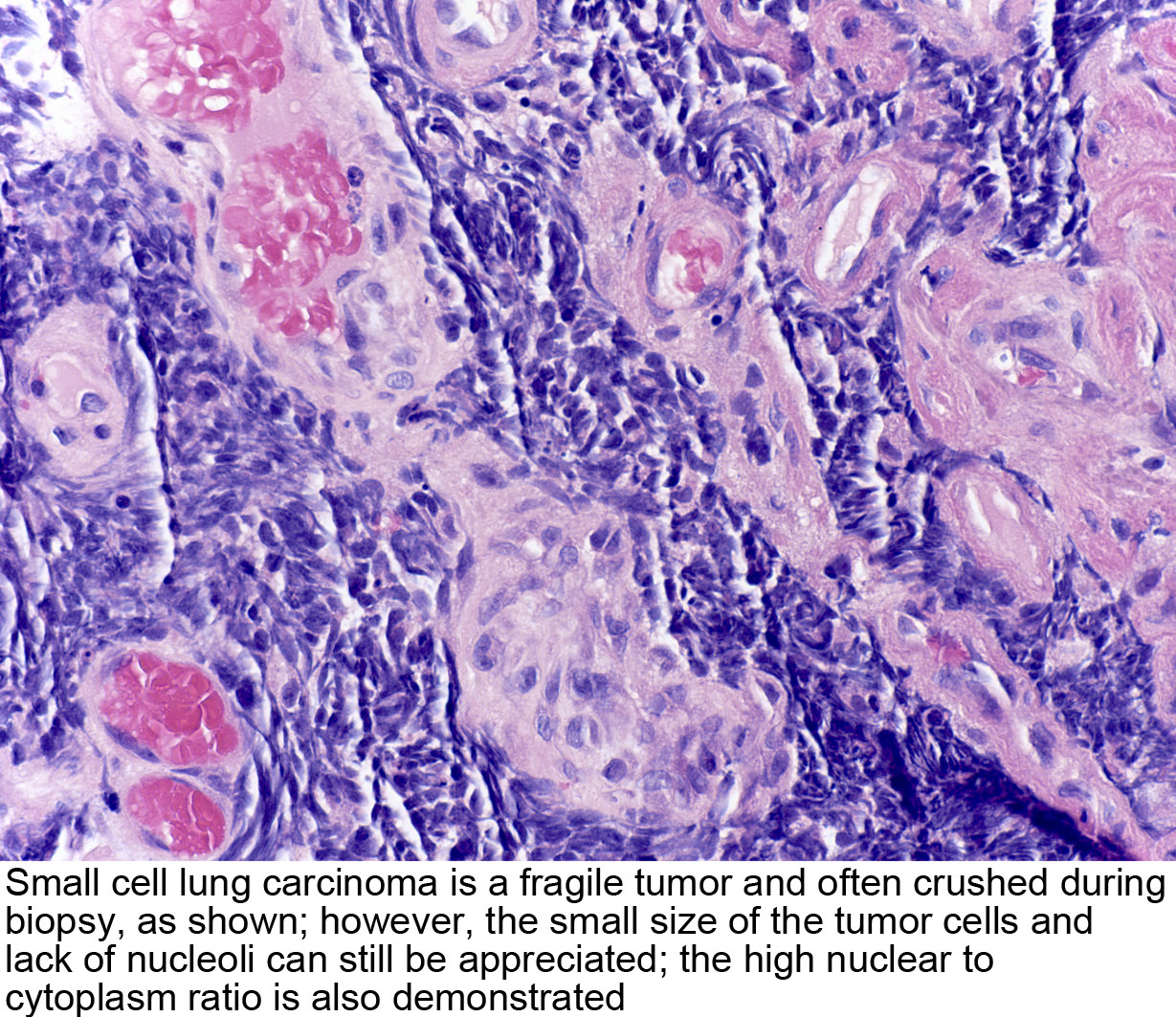 Pathology Outlines - Small cell carcinoma