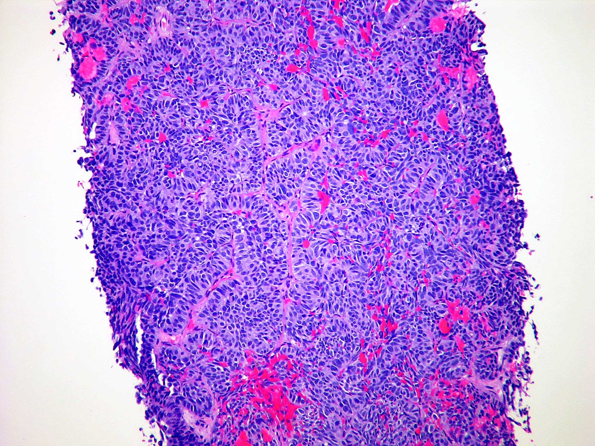 Atypical carcinoid tumor of lung metastatic to adrenal gland