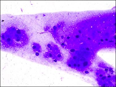 Labial granular cell tumor, DiffQuik