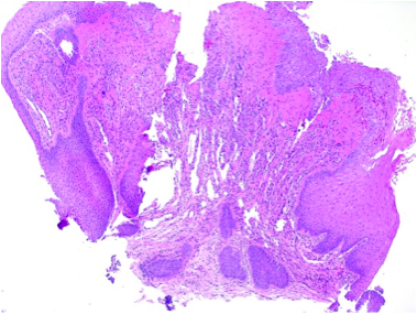 Overlying pseudoepitheliomatous hyperplasia