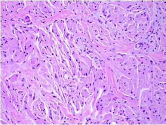 H&E of tracheal granular cell tumor