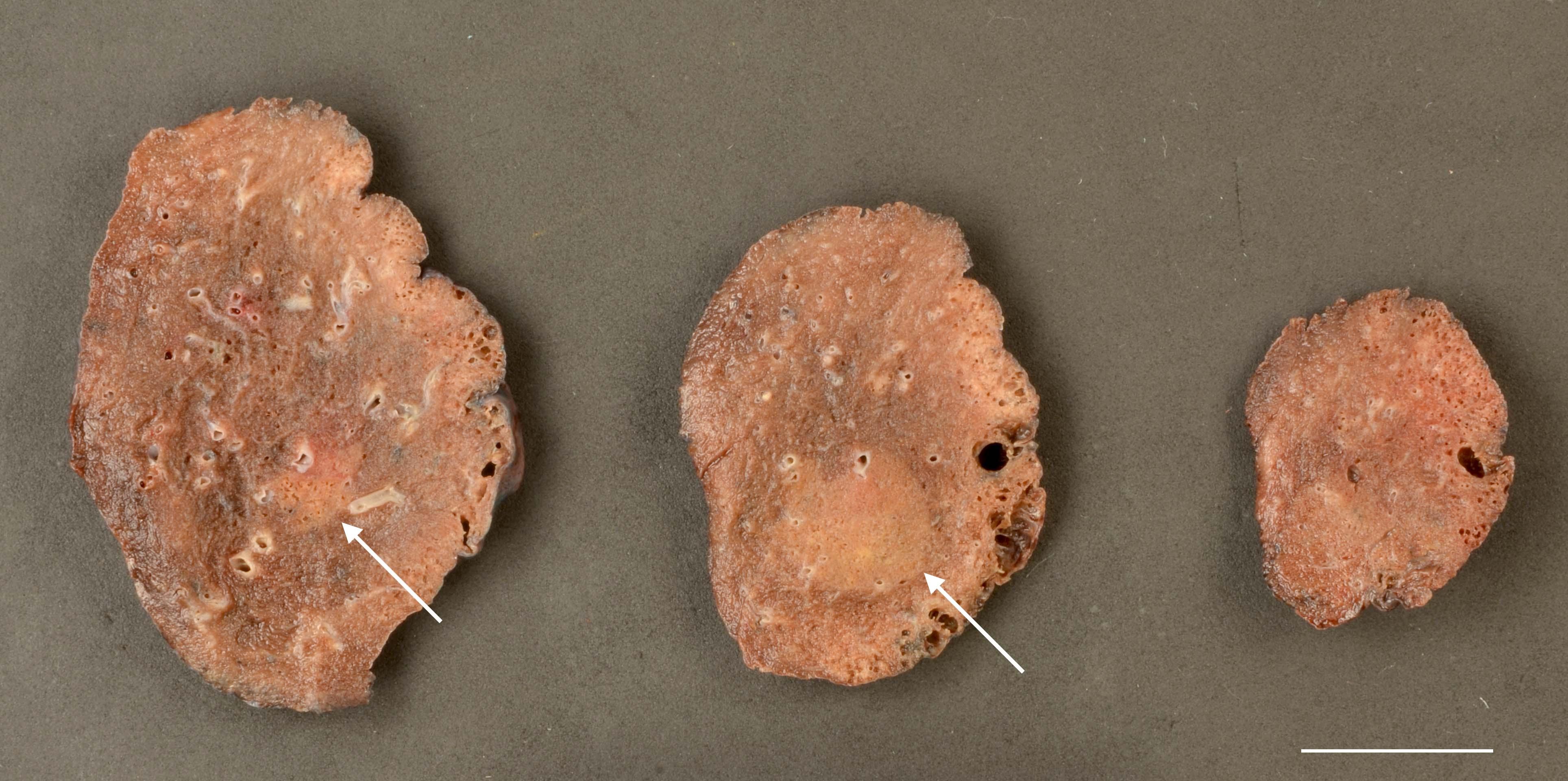 Lobectomy specimen