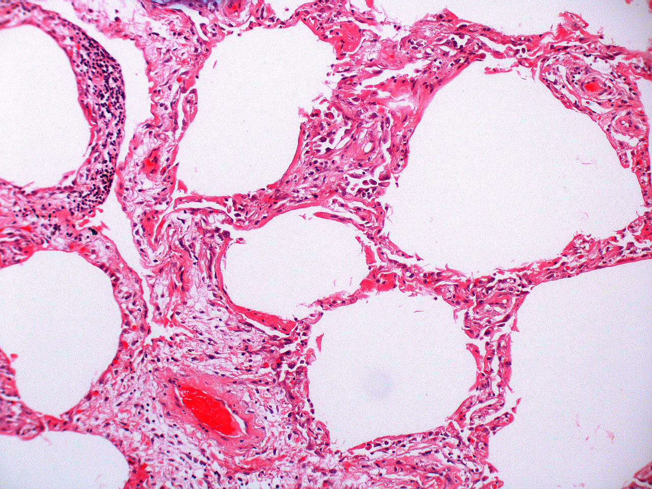 Fibroblastic proliferation with remnants of hyaline membrane