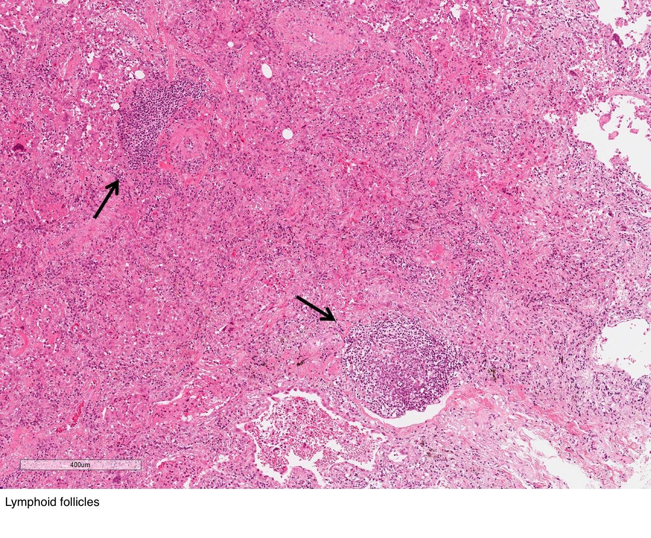 Lymphoid follicles