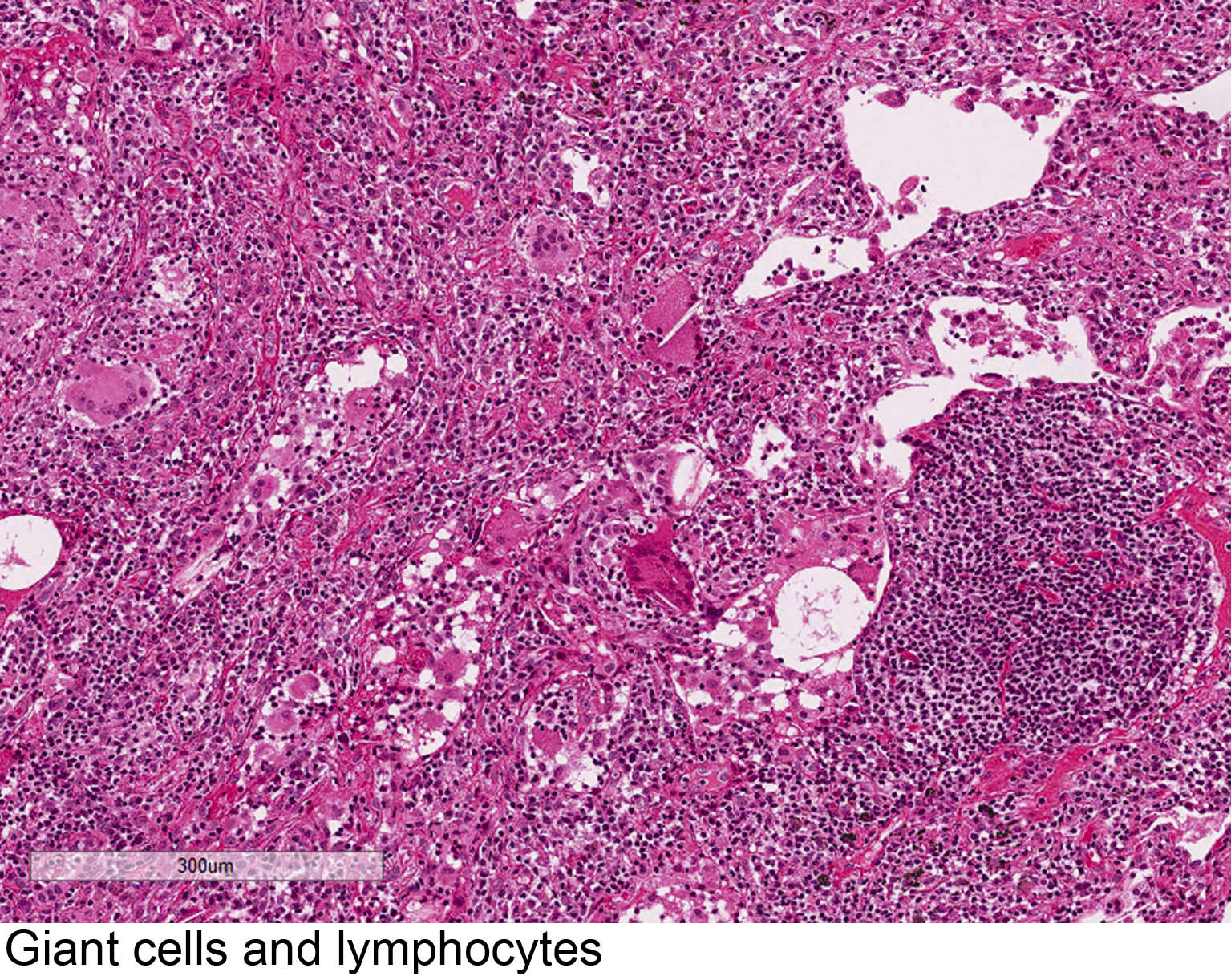 Giant cells and lymphocytes