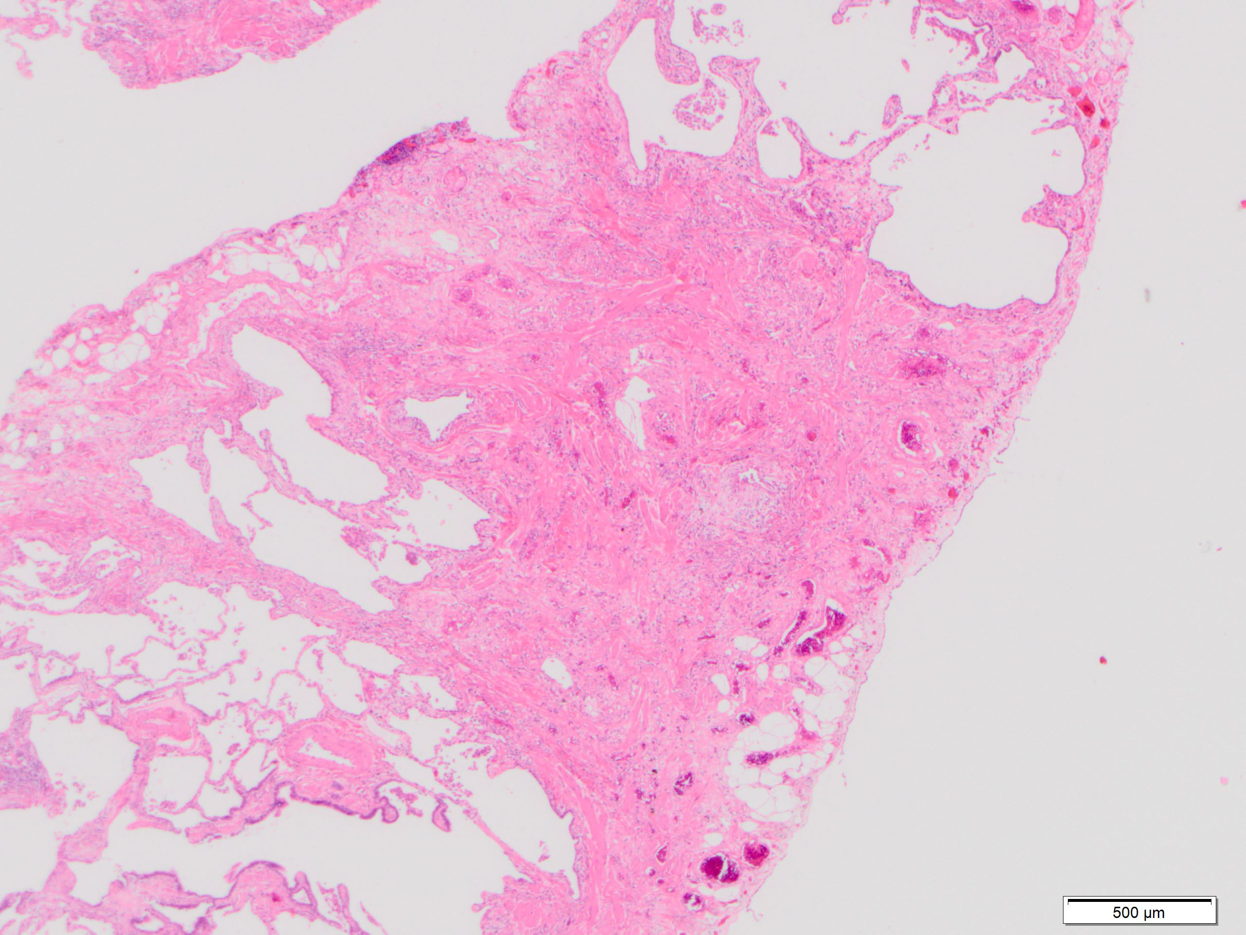 Dense fibrosis with smooth muscle hyperplasia