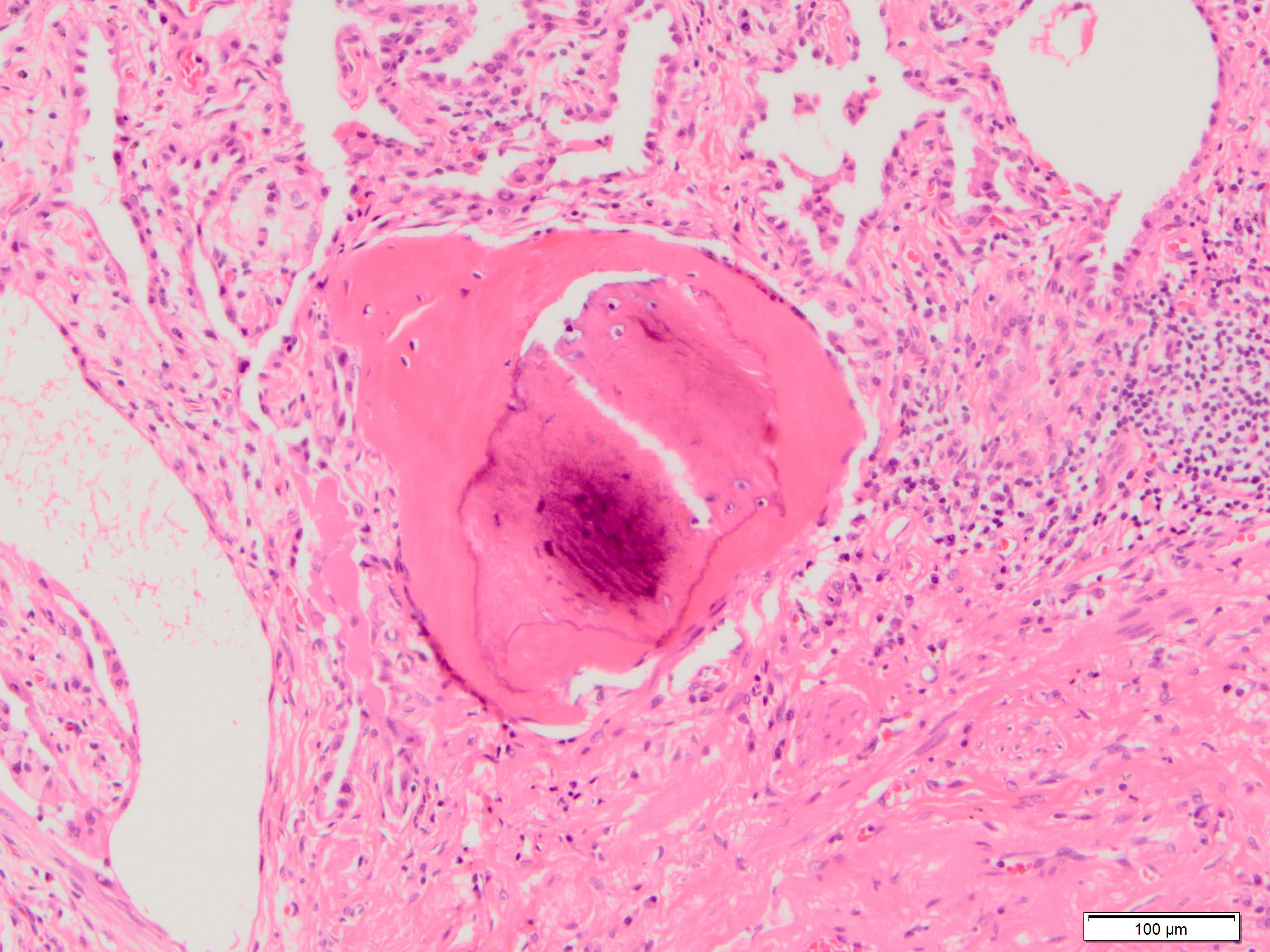 Bone metaplasia