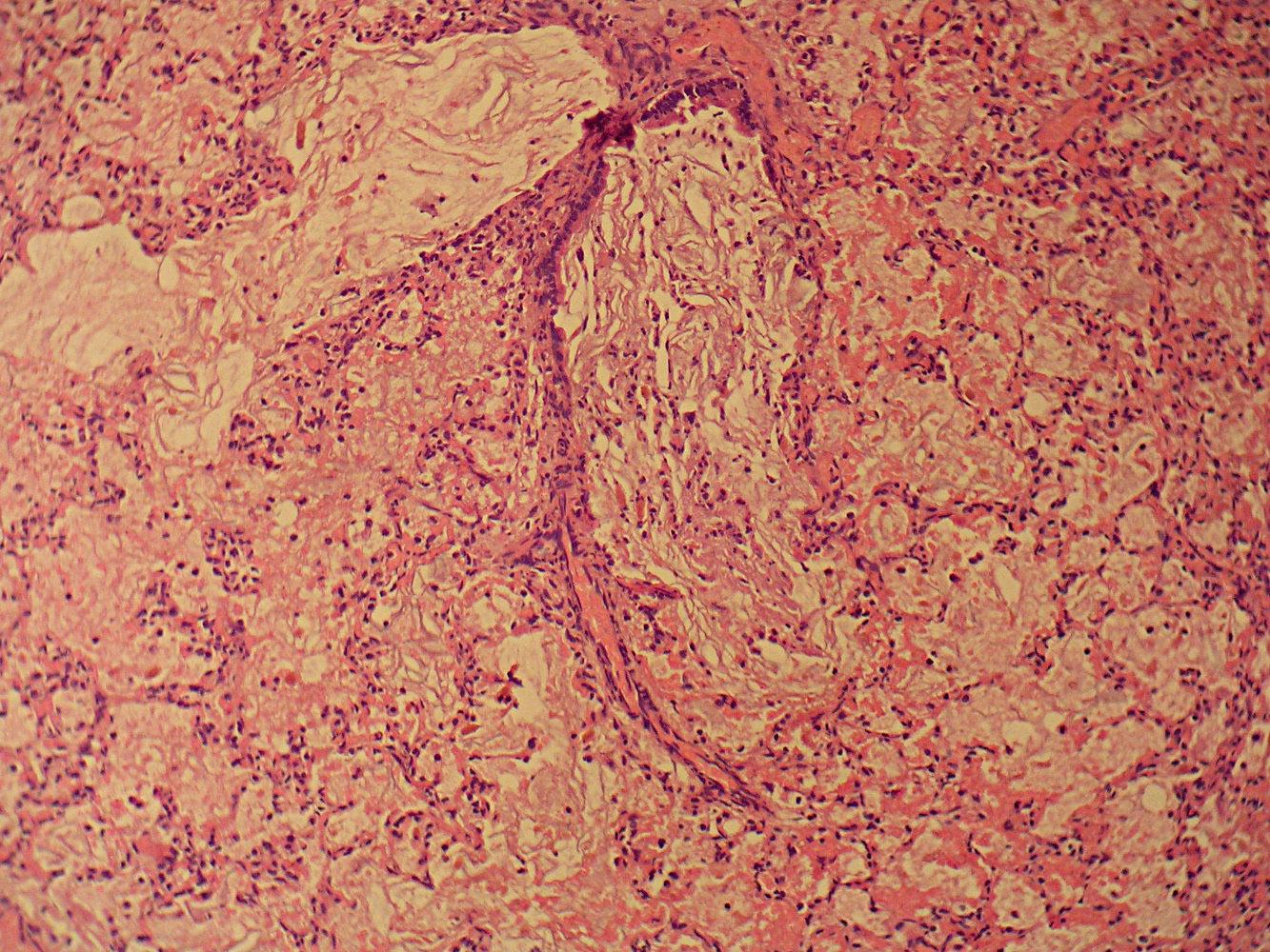 Amniotic fluid aspiration pneumonitis