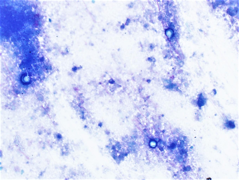 Spherule cytologic smear