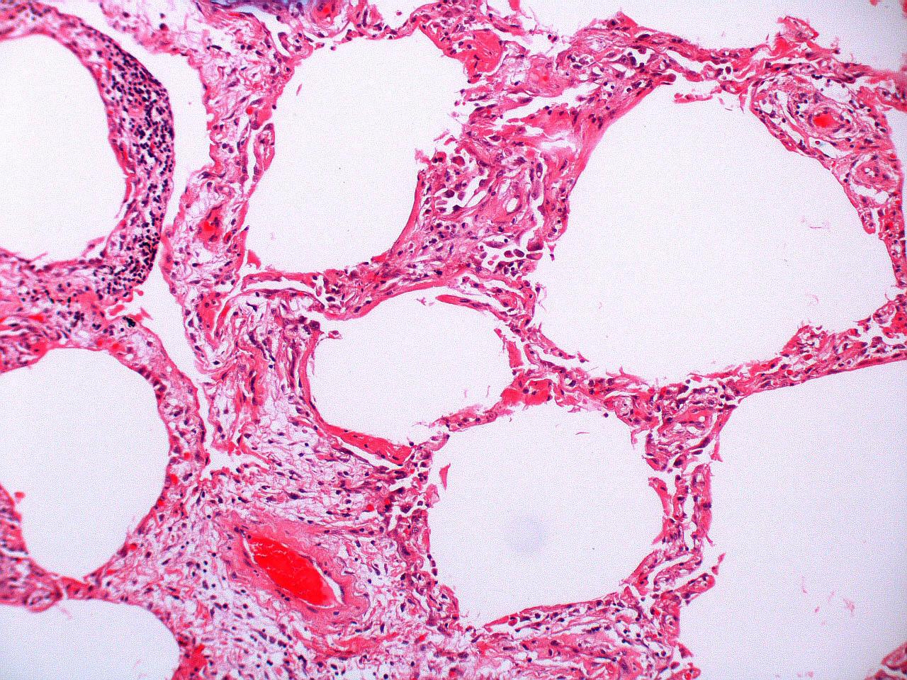 Fibroblastic proliferation