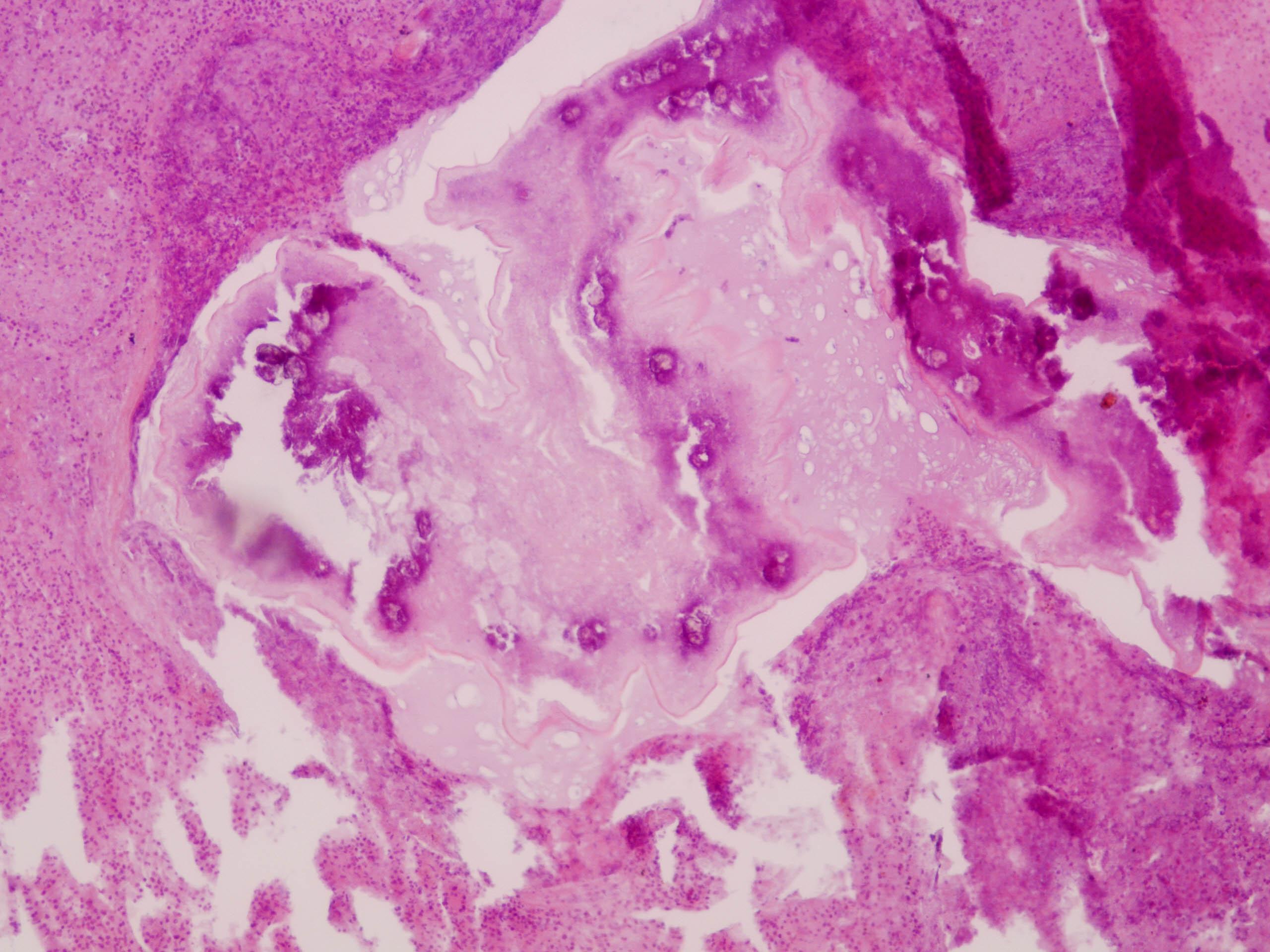 Pulmonary embolization