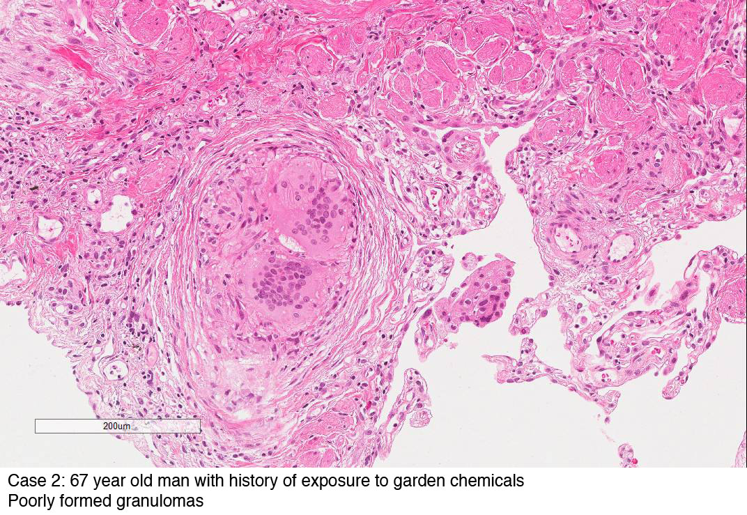 Case 2: 67 year old man with history of exposure to garden chemicals
