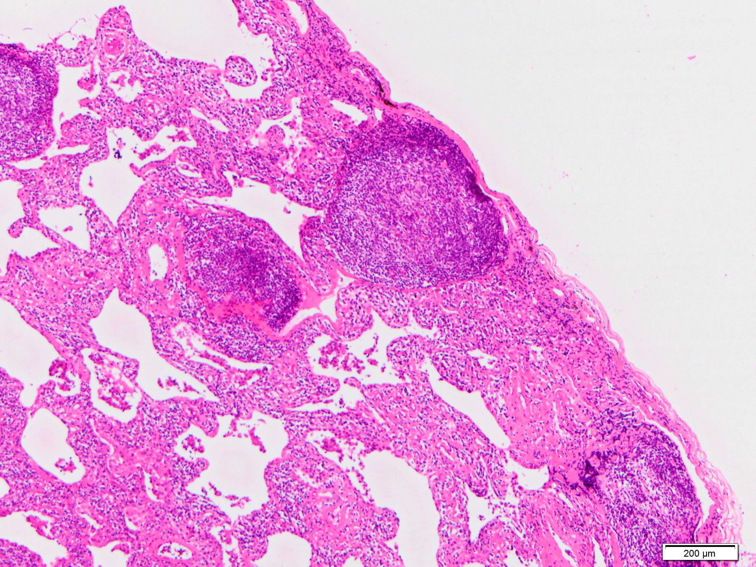 Pleuritis with lymphoid follicles