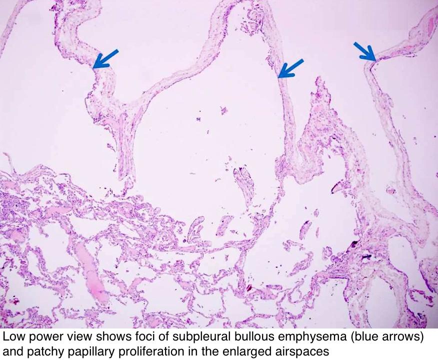 Foci of subpleural bullous emphysema