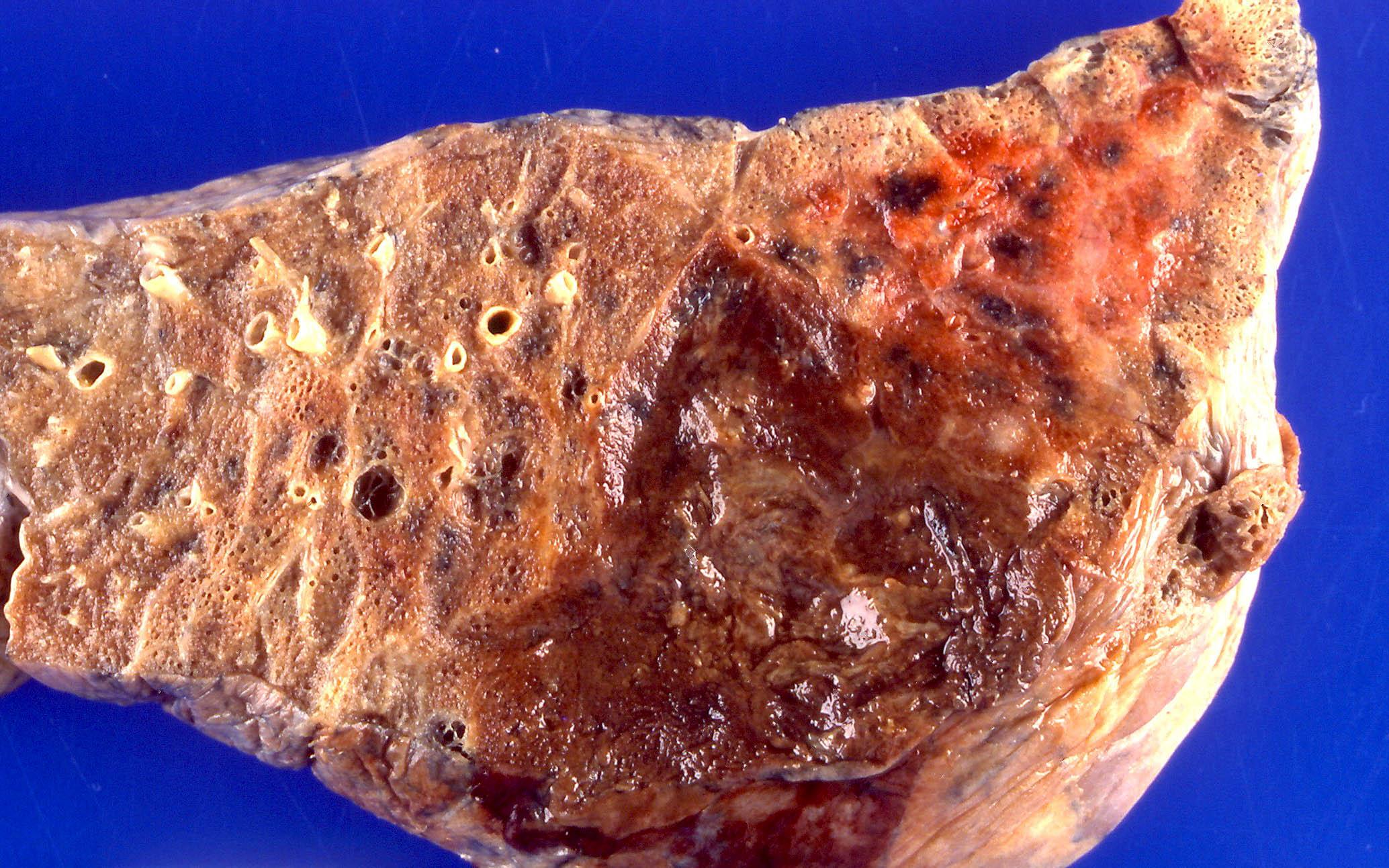 Pseudomonas pneumonia