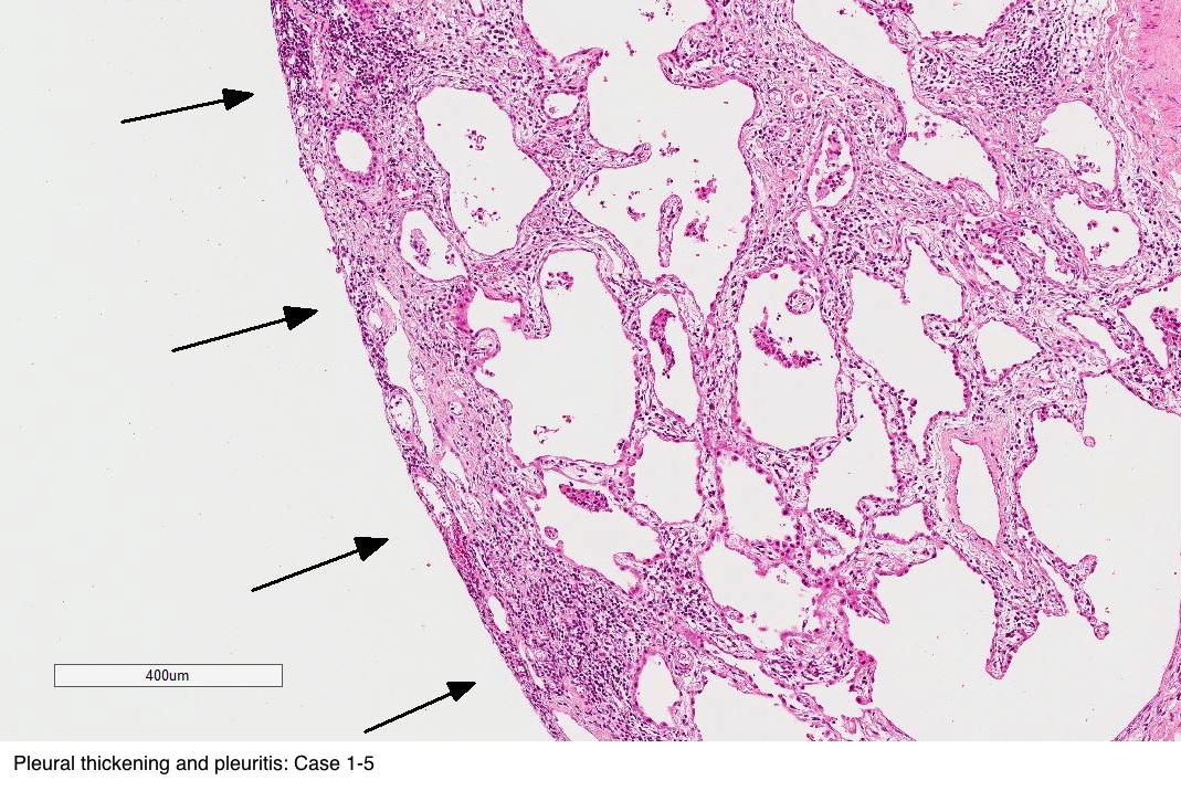Pleural thickening and pleuritis