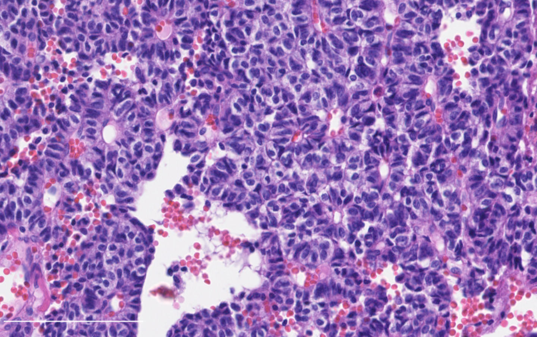 Histologic pattern: rosettes