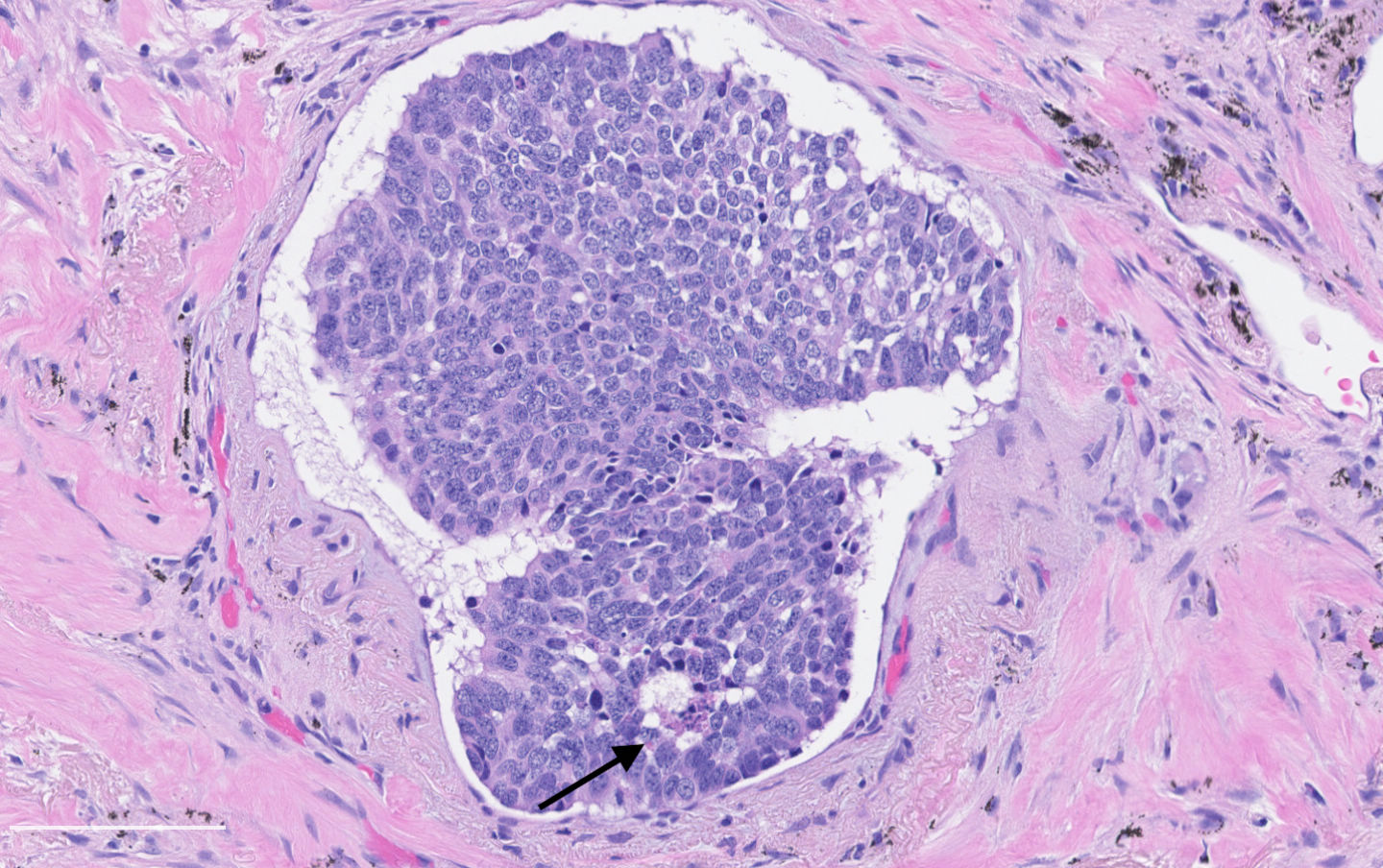 Lymphovascular invasion with punctate necrosis