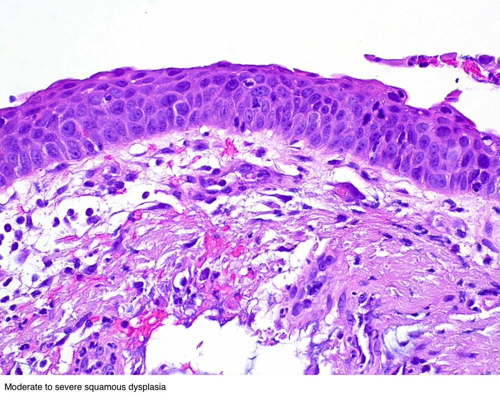 Moderate to severe dysplasia