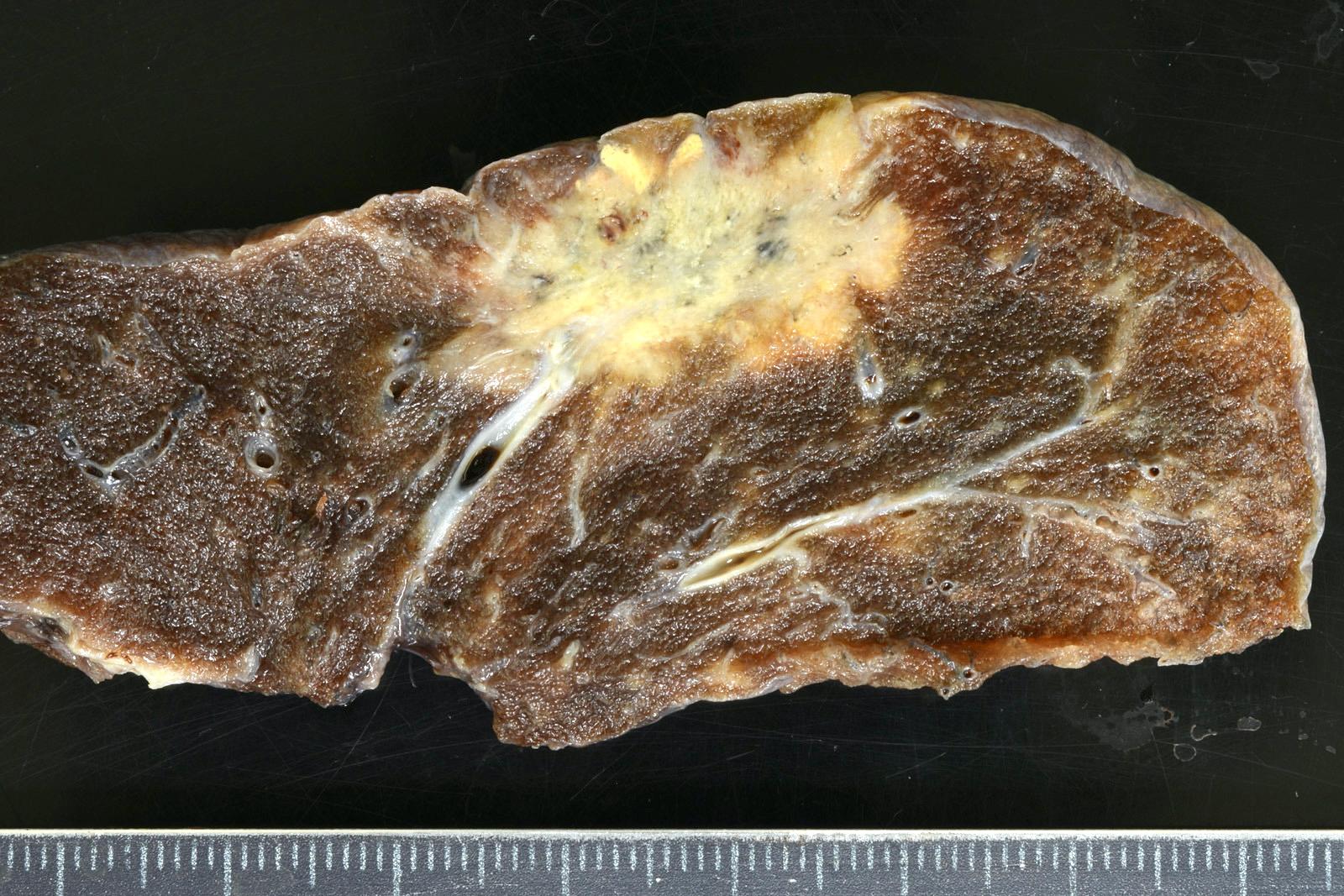 Invasive mucinous adenocarcinoma