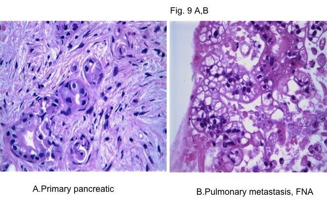 Pancreas: adenocarcinoma