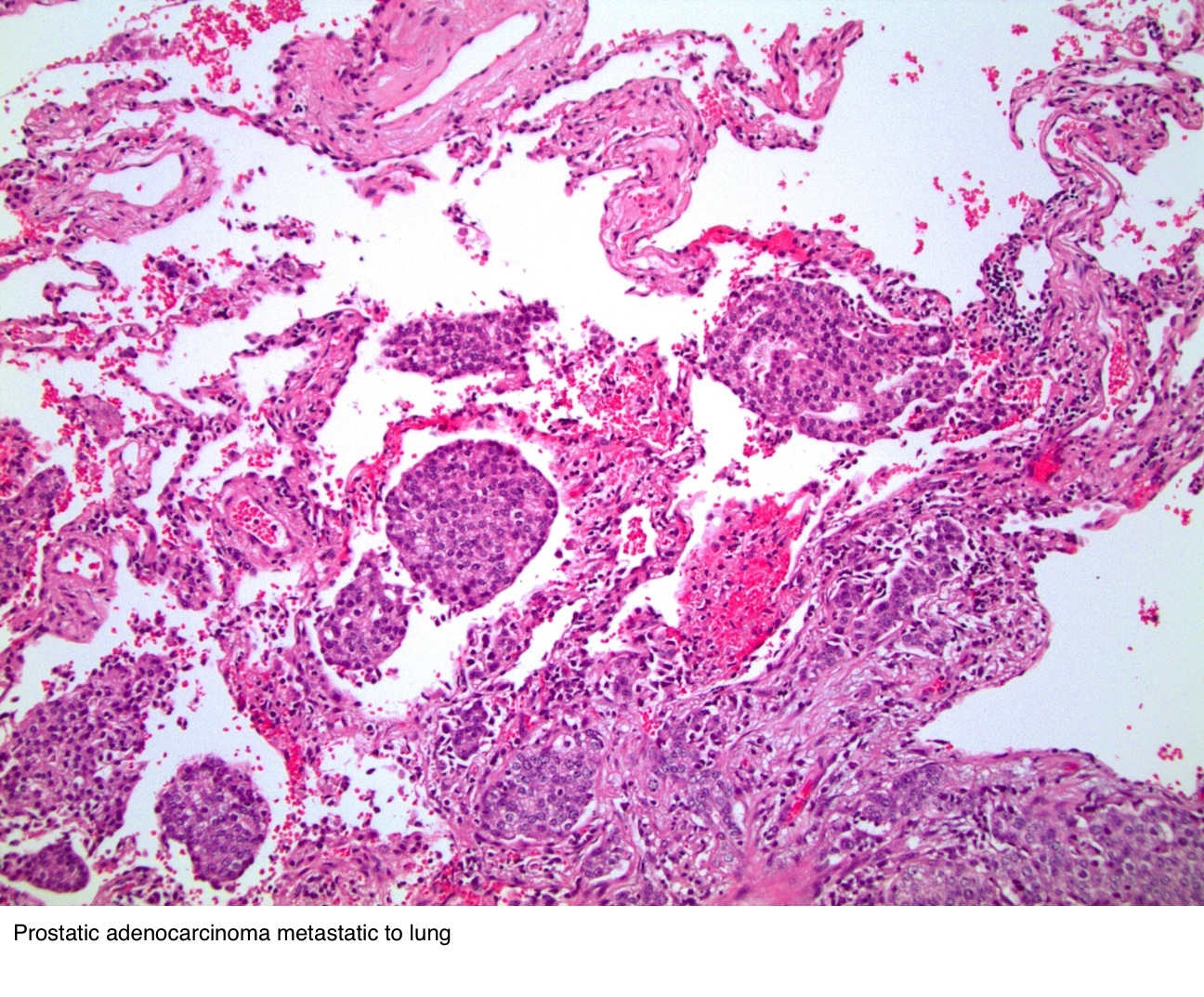 Prostatic<br>adenocarcinoma<br>metastatic to lung