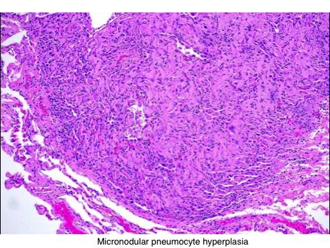 Micronodular pneumocyte hyperplasia