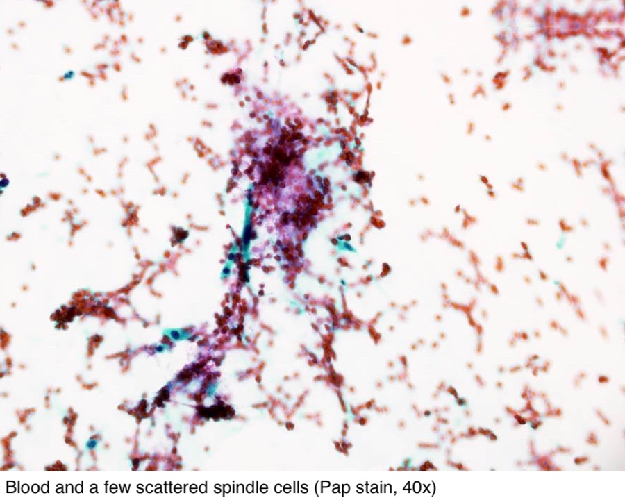 Papanicolaou (Pap) stain