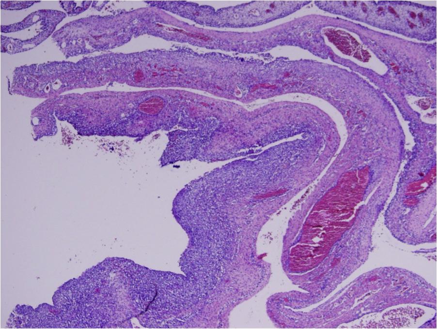 Pleuropulmonary blastoma