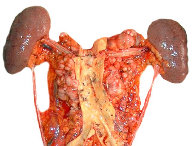Paraaortic lymph nodes