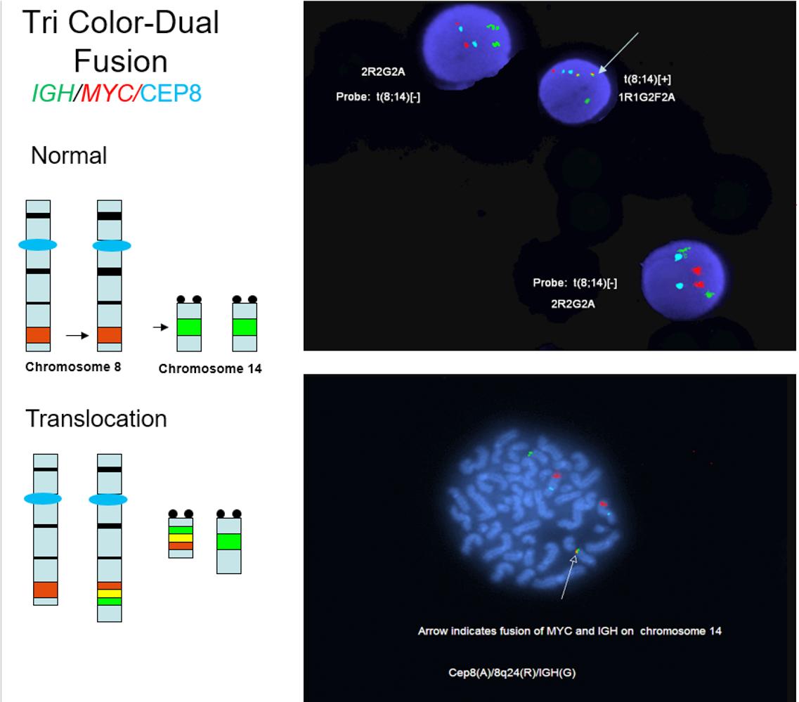Tricolor / dual fusion FISH study
