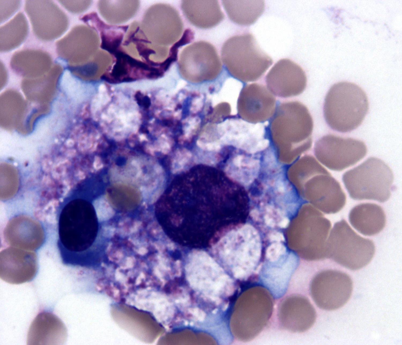 Hemophagocytosis
