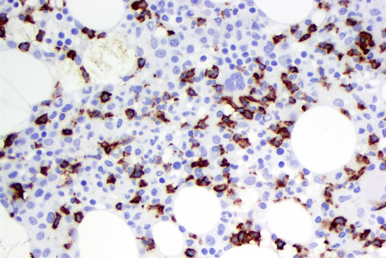 CD57 in T cell LGL