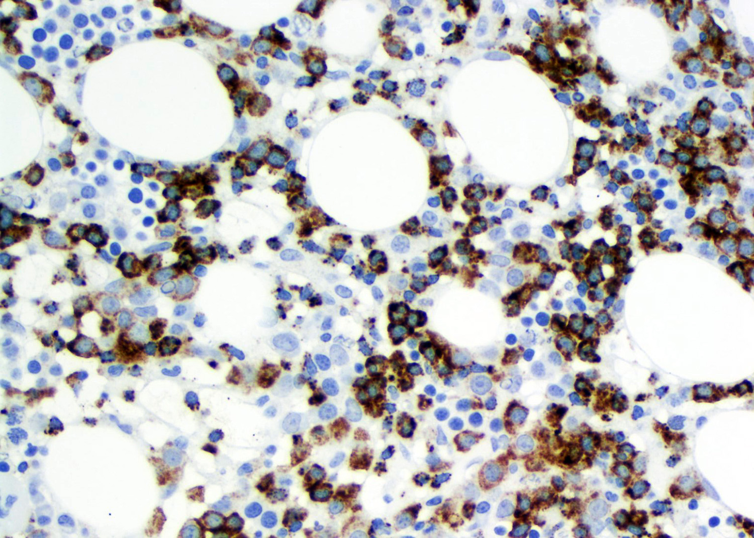 TIA1 in T cell LGL